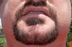 1-beard_after