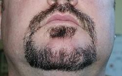 1-beard_after_1