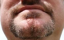 1-beard_before