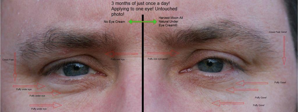 before and after best under eye cream